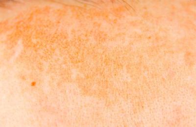 Superficial pigmentation (تصبغات سطحية