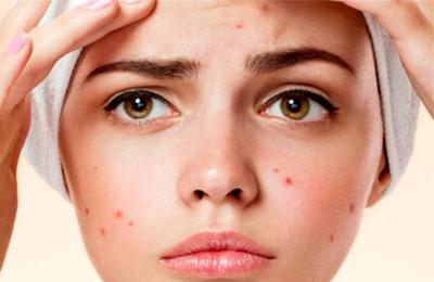 acne حب الشباب